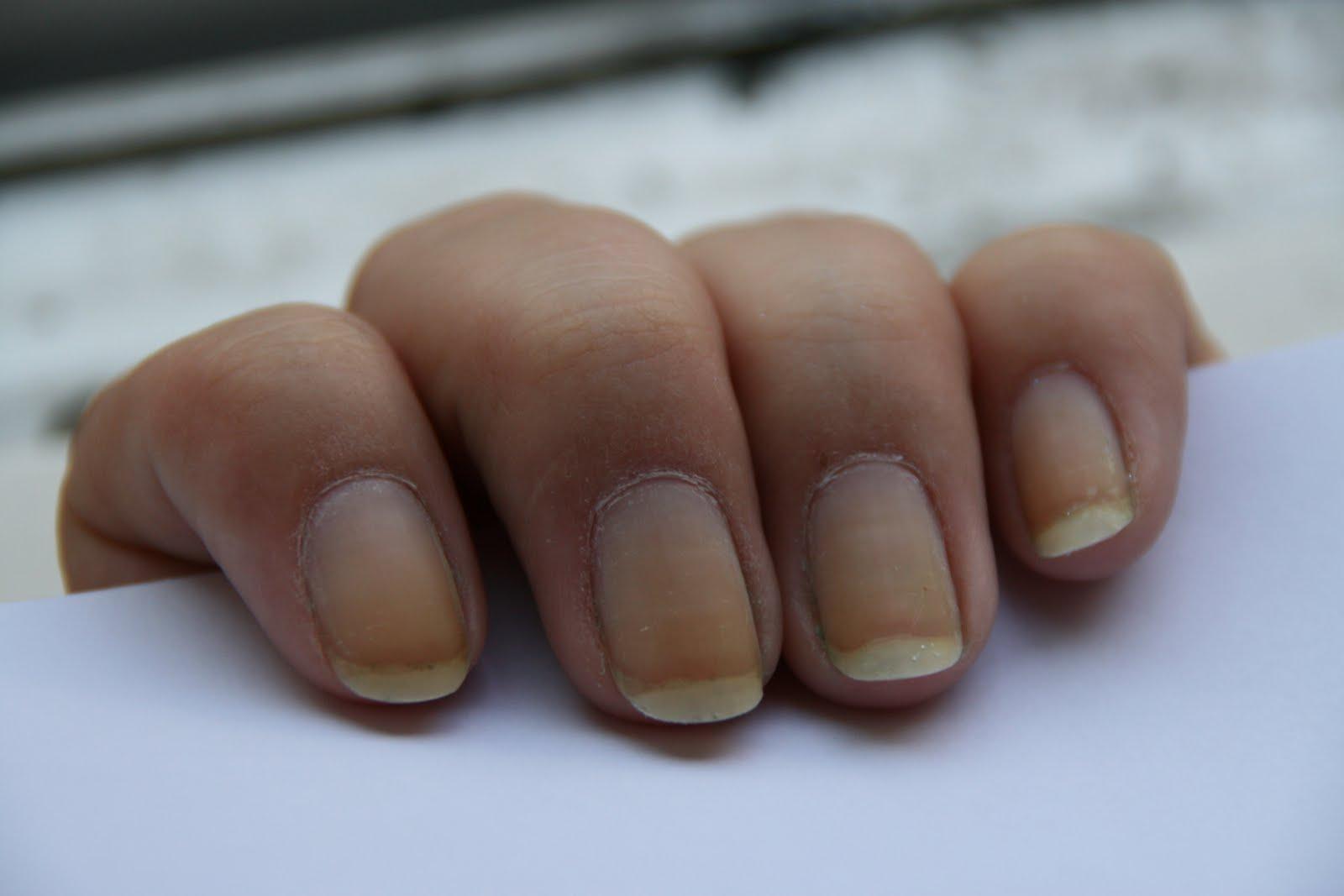 grønne negle efter kunstige negle